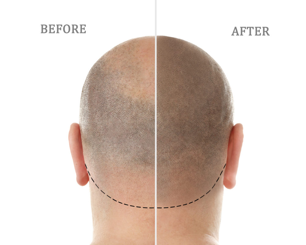 A Revolution in Hair Transplant Procedure Offers Relief for Men (and Women)