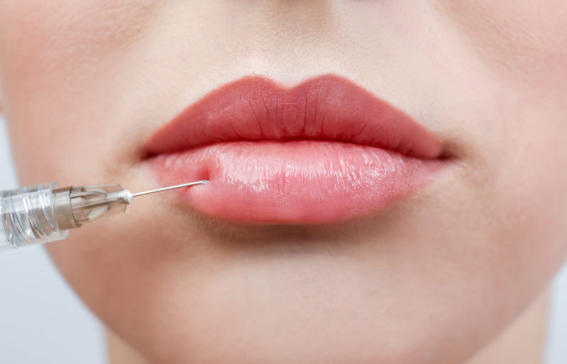 Are dermal fillers for me? Pros and cons of dermal fillers